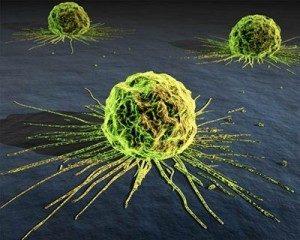 CANCER: WHAT ARE THE CAUSES WITHINJ BODY AND MIND? @ MindBody Medicine Center   Scottsdale   Arizona   United States